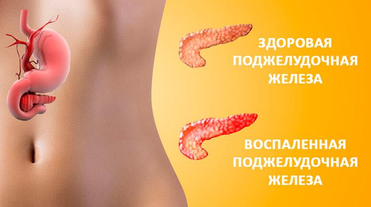 Симптомы рака печени и поджелудочной железы